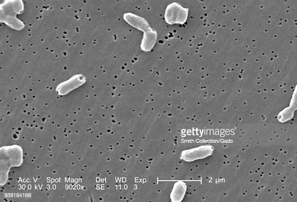 Rodshaped Gramnegative Salmonella infantis bacteria revealed in the scanning electron microscopic image 2005 Image courtesy Centers for Disease...