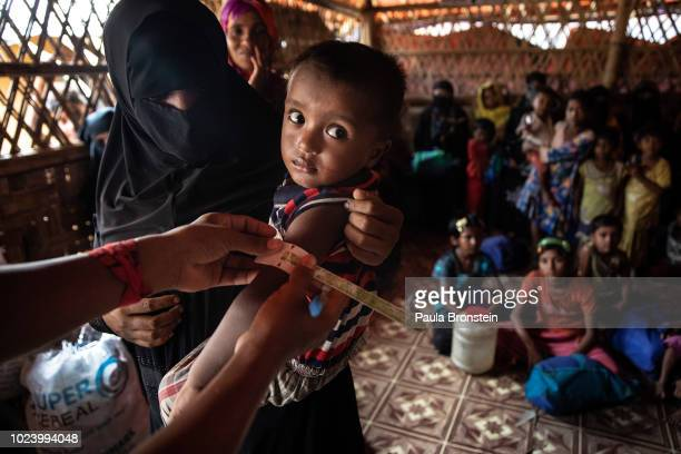 Rohingya boy gets his arm measured to determine his nutrition level at Action Against Hunger Action Contre La Faim in Kutupalong camp on August 26...