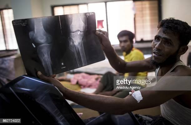 COX'S BAZAR BANGLADESH OCTOBER 1 A Rohingya Muslim shows his xray film in the Sadar Hospital in the Bangladeshi town of Cox's Bazar on October 1 2017...