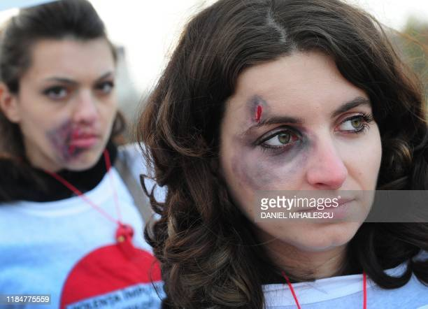 Romanian women who have lent their faces to a campaign against domestic violence by being photographed as abused disfigured by bruises or scars...