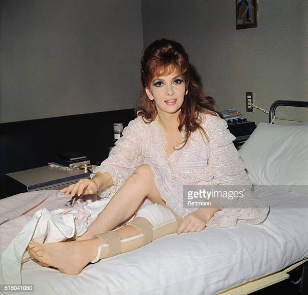 Film star Gina Lollobrigida injured in a car crash two weeks ago shows her hurt leg in hospital here where she is recovering from an operation to...