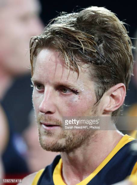Rory Sloane of the Crows with a cut eye at the 3 quarter time huddle during the 2021 AFL Round 08 match between the Port Adelaide Power and the...
