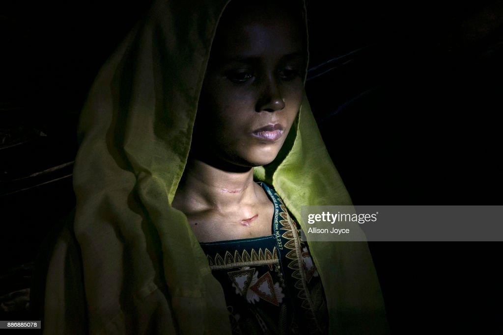 COX'S BAZAR, BANGLADESH - DECEMBER 01: Roshida Begum, 22, poses for a photo on December 1, 2017 in Cox's Bazar, Bangladesh. She fled to Bangladesh shortly after the August 25th attack from Tula Toli village in Myanmar. One day the military came to her village and threw petrol bombs and set houses on fire. They randomly shot anyone they say. She fled and hid on a riverbank, where the military found her and other people. Her husband swam across and escaped. They shot the young boys and stole the jewelry the women had. They took little children and babies and threw them into the river. Then they took us to a pond and made us kneel up to our necks in the water. A helicopter was circling overhead again and again.Ó she says. The military took groups of 4-5 women into houses and raped them. My baby was 25 days old, they grabbed him from my arms and smashed him on the ground so hard, he died. The military took me and 5 other women into a house and raped us. After they were done, they slit our necks with machetes. They thought I was dead and they left and set the house on fire. I was the only one who escaped.' She says. She hid in a paddy field and in a forest until she came across another woman and her daughter, and together they crossed into Bangladesh. For 8 days they walked, surviving by drinking water from the paddy fields. They took a boat into Bangladesh and she went to the MSF clinic, where she spent 18 days recovering. Her husband found her there, and when she was discharged they moved into a camp. In the attack, she lost her mother, father, brother, all together she lost 17 members of her family. 'In Bangladesh, sometimes I'm happy, but then I'll see an old man and miss my father, or I'll see a woman with a baby, and I'll miss my son. I can't help but cry. I want justice from the world, why did they kill my mother and father and sisters? I hope the world will give me justice. They killed my parents and relatives for no reason.