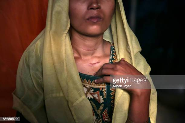 COX'S BAZAR BANGLADESH DECEMBER 01 Roshida Begum shows where the Myanmar military slit her throat December 1 2017 in Cox's Bazar Bangladesh She fled...