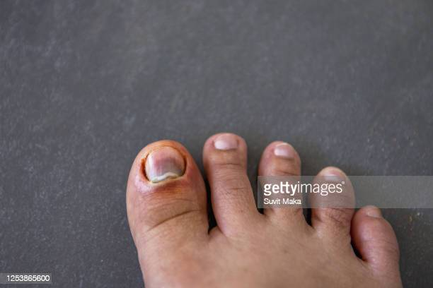 rotten toenails - images of ugly feet stock pictures, royalty-free photos & images