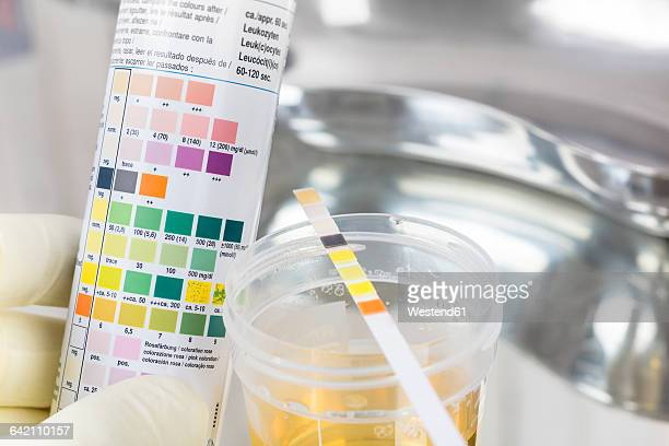 routine test, urine rapid test, urine test strip, urine sample - urine sample stock photos and pictures