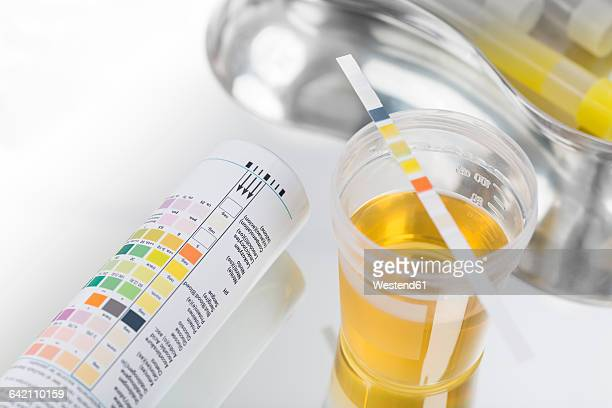 routine test, urine rapid test, urine test strip, urine sample - urine stock pictures, royalty-free photos & images