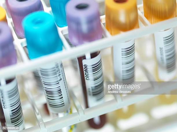 A row of human blood and chemistry samples awaiting testing in the lab