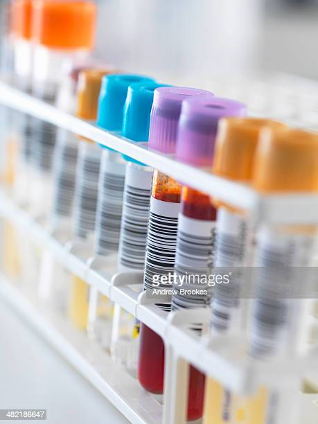 a row of human samples for analytical testing including blood, urine, chemistry, proteins, anticoagulants and hiv - urine sample stock photos and pictures