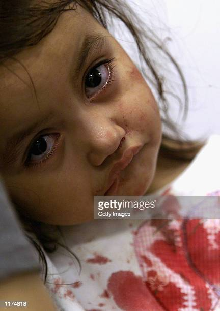 Roxanna Reyesaged 2 confirmed by doctors to have Haemorrhagic Dengue Fever waits to be attended at the Hospital Escuela July 25 2002 in Tegucigalpa...