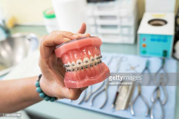 оrthodontic model and dentist tool - demonstration teeth model of varieties of orthodontic bracket or brace - brace stock pictures, royalty-free photos & images