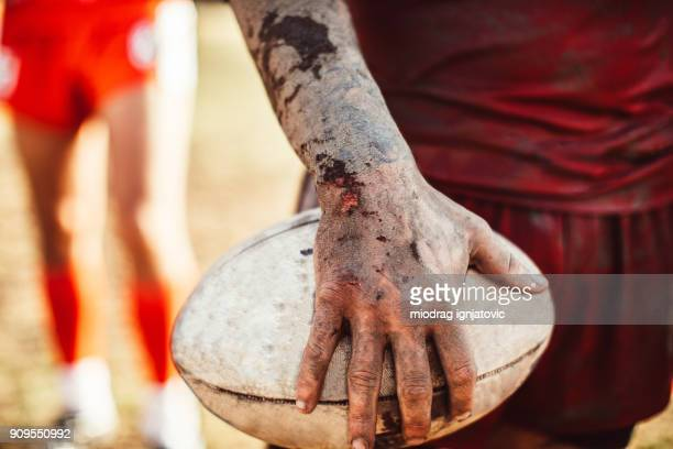 rugby is rough sport - hand injury stock photos and pictures