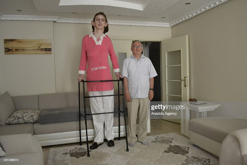 Rumeysa Gelgi, 17, granted as the world's tallest girl with her 2,13-meter height, poses with her father Haydar Gelgi (R) at their home in Turkey's Karabuk province on June 24, 2014. Rumeysa Gelgi who has Weaver syndrome was named the worlds tallest girl by Guinness Book of World Records.