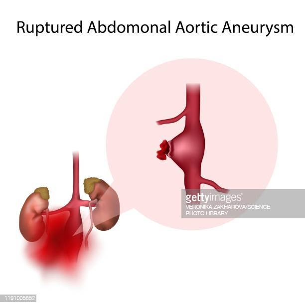 ruptured abdominal aortic aneurysm, illustration - petechiae stock pictures, royalty-free photos & images