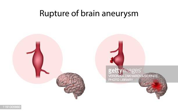 ruptured brain aneurysm, illustration - petechiae stock pictures, royalty-free photos & images