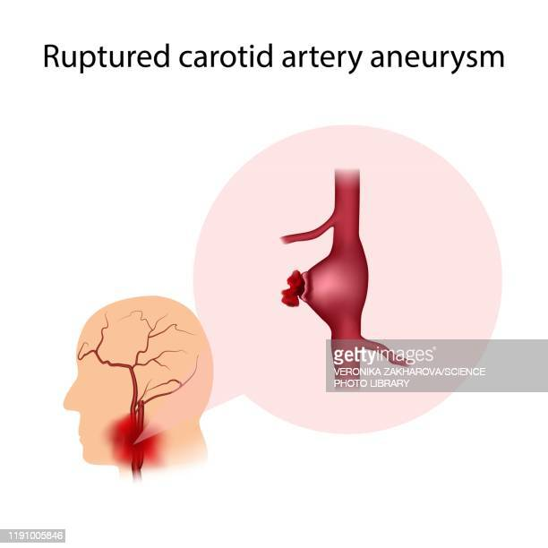 ruptured carotid artery aneurysm, illustration - petechiae stock pictures, royalty-free photos & images