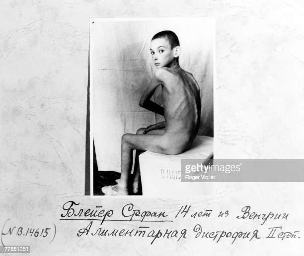 A Russian medical card showing an emaciated survivor of the Auschwitz concentration camp March 1945 The text reads 'Bleyer Stephan 14 years from...