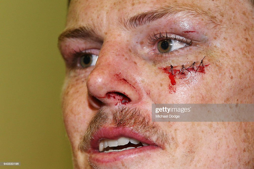 Ryan Davis of the Suns is seen with stitches to his face during the round two AFL match between the Carlton Blues and the Gold Coast Suns at Etihad Stadium on March 31, 2018 in Melbourne, Australia.