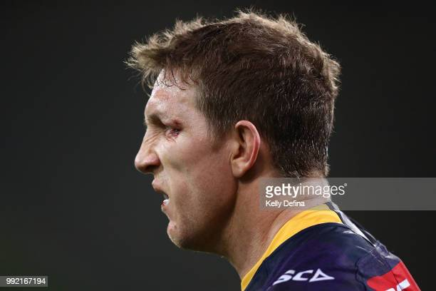 Ryan Hoffman of the Storm is seen with a cut to his eye during the round 17 NRL match between the Melbourne Storm and the St George Illawarra Dragons...