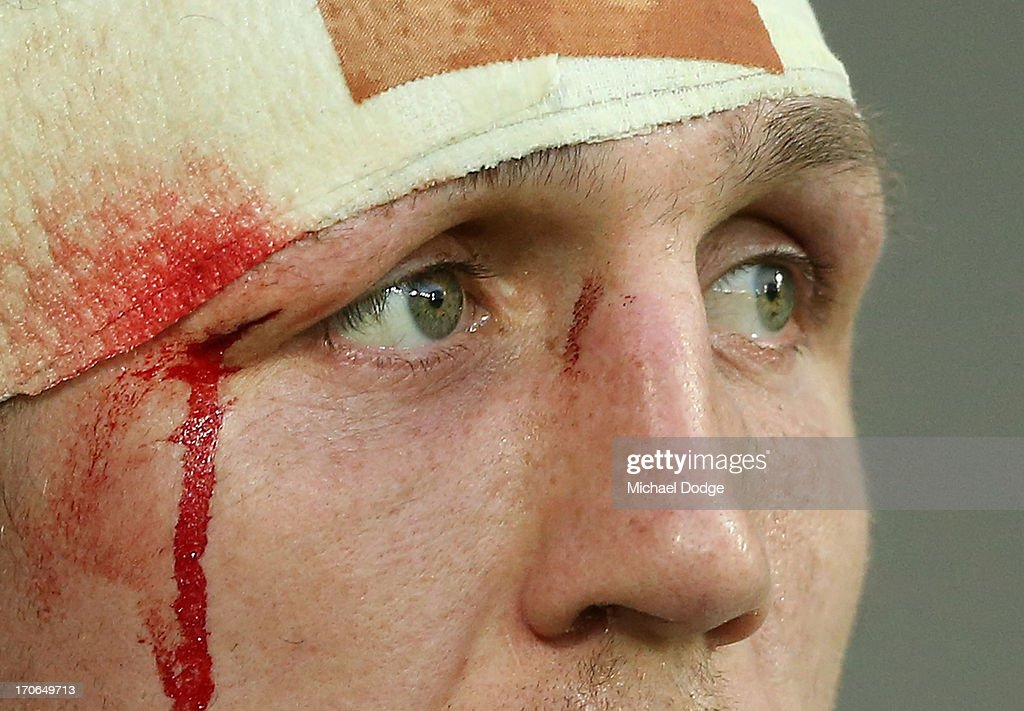 Ryan Hoffman of the Storm with cut eye looks ahead during the round 14 NRL match between the Melbourne Storm and the Newcastle Knights at AAMI Park on June 16, 2013 in Melbourne, Australia.