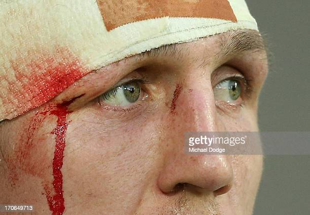 Ryan Hoffman of the Storm with cut eye looks ahead during the round 14 NRL match between the Melbourne Storm and the Newcastle Knights at AAMI Park...
