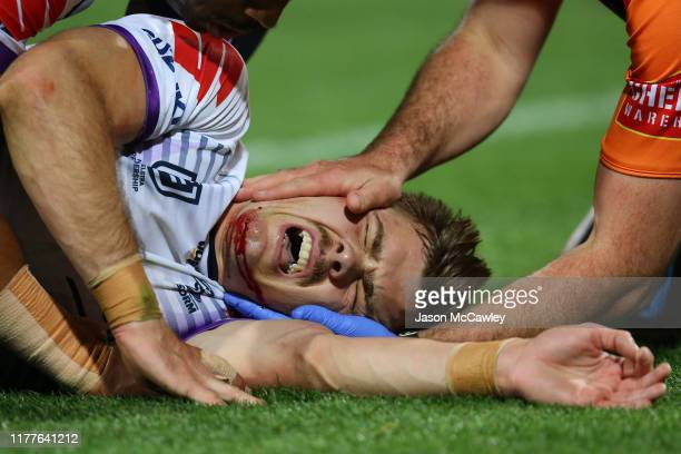 Ryan Papenhuyzen of the Storm lies on the field injured during the NRL Preliminary Final match between the Sydney Roosters and the Melbourne Storm at...