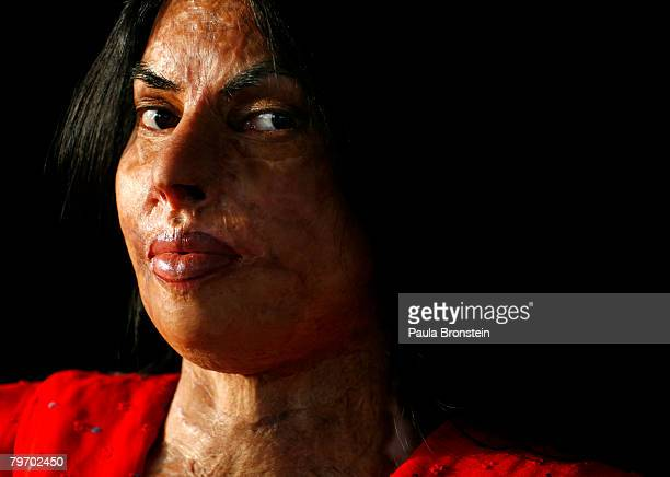 Sabra Sultana a victim of acid violence poses in Islamabad on June 11 2007 Sabra was burned at the age of 15 a child bride married off to an older...