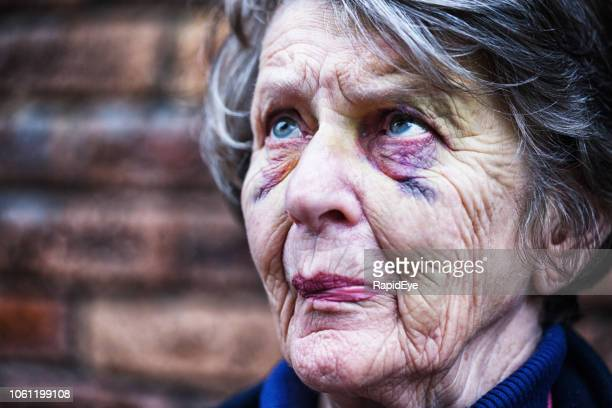 sad and scared old woman with bruised face - black eye stock pictures, royalty-free photos & images