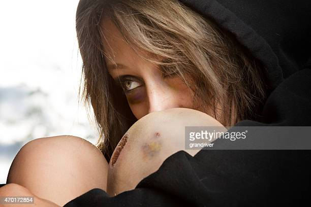 sad young caucasian woman at great risk with black eye - human trafficking stock photos and pictures