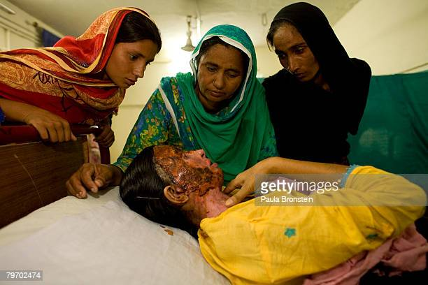 Saeeda Bukhsh an acid burn victim is visited by family in a burn ward at the Nishtar hospital in Multan June 20 2007 in Multan Punjab Pakistan Saeeda...