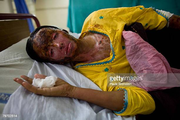 Saeeda Bukhsh an acid burn victim rests in a burn ward at the Nishtar hospital in Multan June 20 2007 in Multan Punjab Pakistan Saeeda was burned a...
