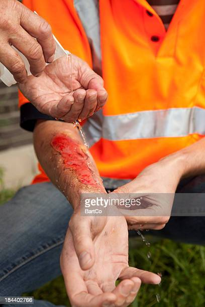 safety is very inportant at work. burnings can happen often. - burn injury stock photos and pictures