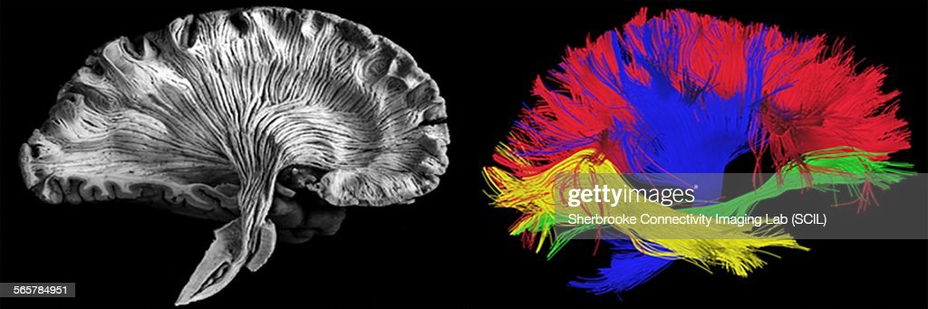 Sagittal, side view. Left - picture of a human brain dissection by a neuroanatomist, Right - reconstructed fibers by tractography : Stock Photo