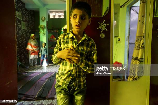 Saiful 10 years old at home in the Tila Jamalpura neighborhood Saiful was born to parents contaminated by a carcinogenic and mutagenic water supply...