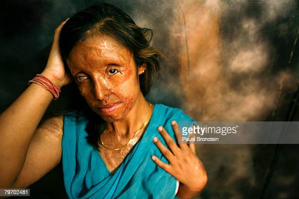 Saira Liaqat a victim of acid violence who was burned 4 years ago, poses in Islamabad, June 11, 2007. Saira is from Lahore and was attacked with acid...