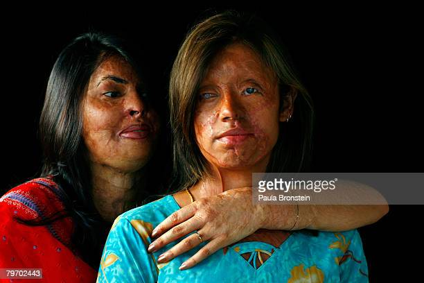 Saira Liaqat a victim of acid violence who was burned 4 years ago poses with friend and fellow acid survivor Sabra Sultana in Islamabad June 11 2007...