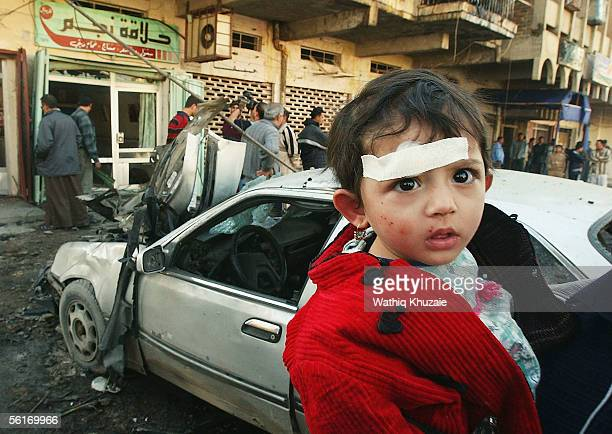 Saja Jasim a ten month old Iraqi baby girl is pictured after being wounded by a car bomb explosion on November 15 2005 in Baghdad Iraq A car bomb...