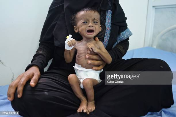 Saleh is four months old and suffers from severe acute malnutrition He weighs 25 kg and was admitted to the hospital on April 14th His 22yearold...
