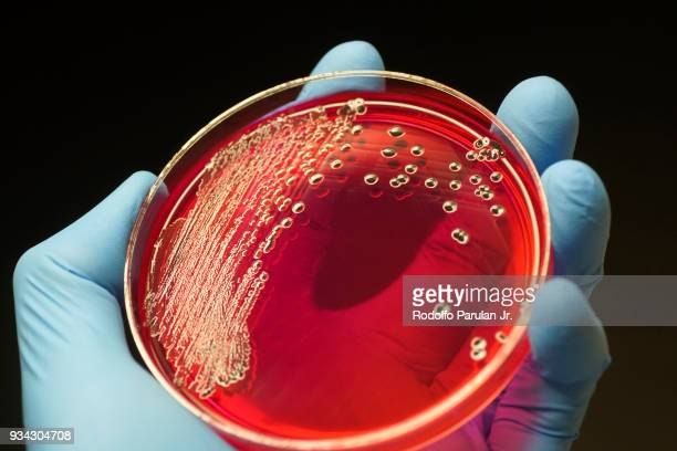 salmonella colonies growing on xld agar plate - salmonella stock photos and pictures