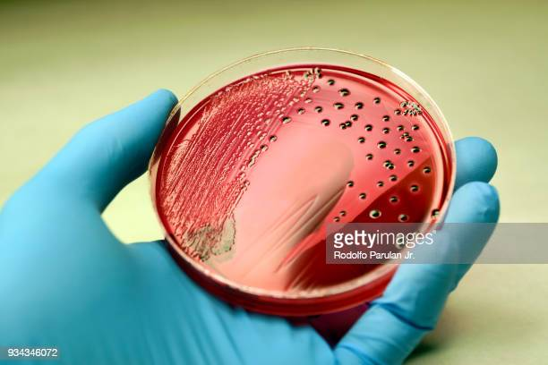 salmonella colonies growing on xld agar plate - petrischale stock-fotos und bilder