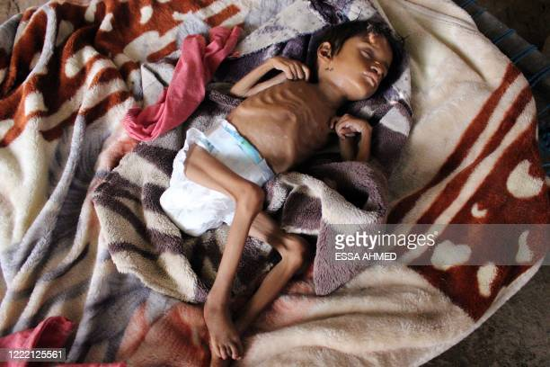Salwa Ibrahim, a five-year-old girl suffering from acute malnutrition and weighing three kilograms, sleeps on a bed inside an improvised house in...