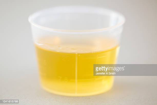 sample - urine sample stock photos and pictures