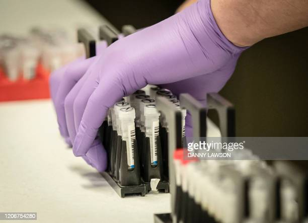 Samples are tested for respiratory viruses which procedure will be used to test the novel coronavirus COVID19 during a visit by Britain's Chancellor...