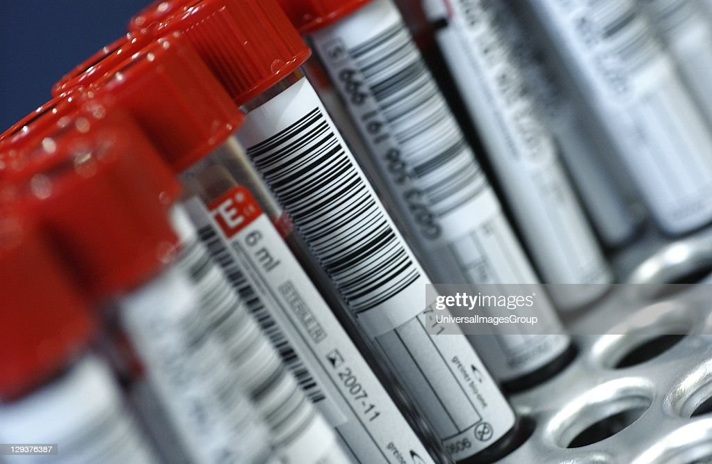 Samples of donated blood in Vacutainer test tubes with red tops : News Photo