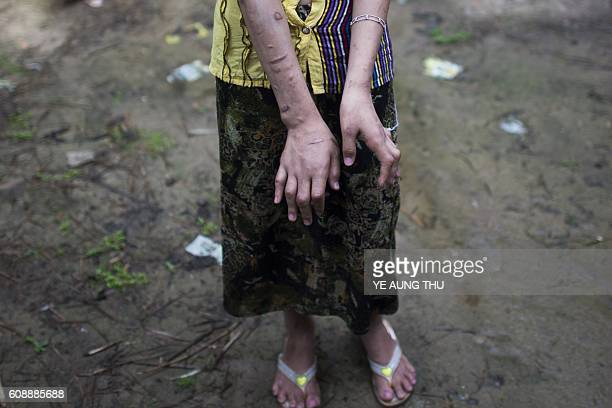 TOPSHOT San Kay Khine a 17yearold Myanmar child slave shows her scarred arms and twisted fingers while recovering in her familys village in Baw Lone...
