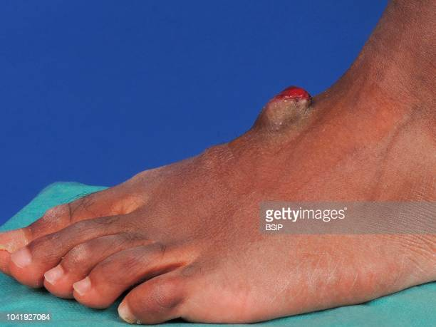 Sarcoma on the dorsal side of the foot