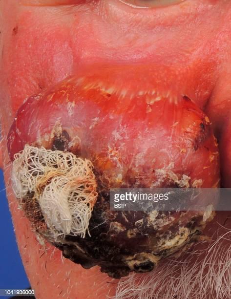 Sarcomatoid squamous cell carcinoma