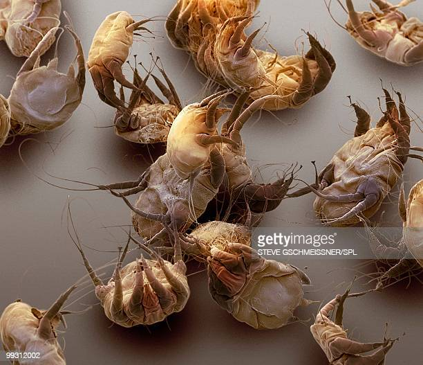 sarcoptic mange mites, sem - high scale magnification stock pictures, royalty-free photos & images