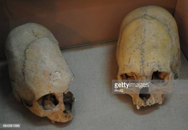 Sarmatians Two deformed human skulls Probably dated in the 3rd century BC Kerch Historical and Archaeological Museum Autonomous Republic of Crimea...