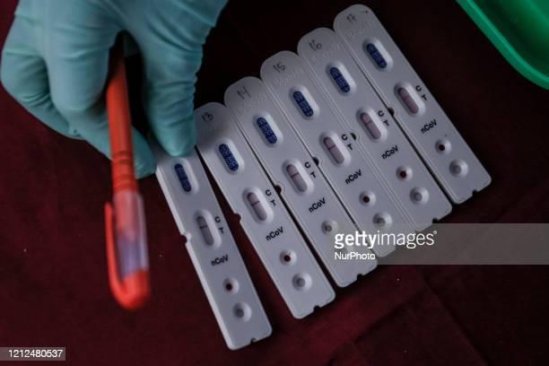 CoV2 anti body test kit being used for coronavirus random rapid test amid coronavirus disease pandemic in Denpasar Bali Indonesia on May 11 2020